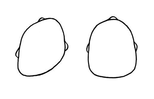 Crâne déformé à cause d'un torticolis